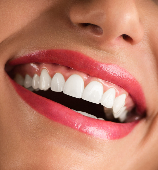 After-Blanqueamiento dental