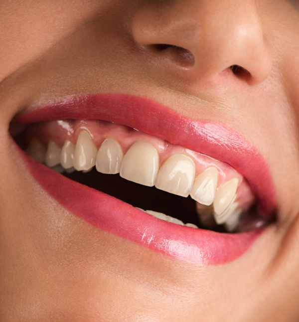 Before-Blanqueamiento dental